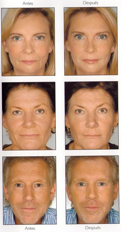 Tratamientos faciales antes y después